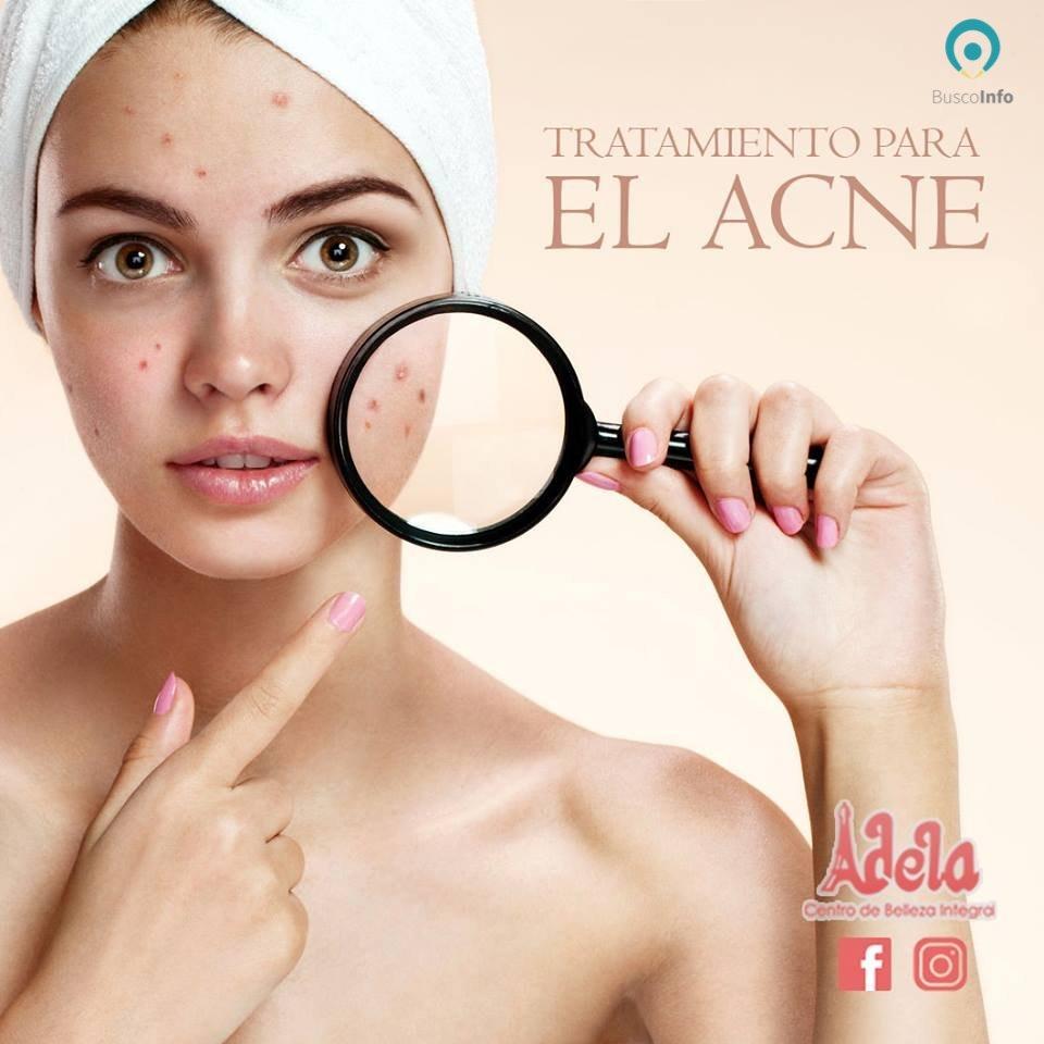 Tratamientos faciales - Tratamiento anti - acné